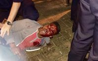 Martese Johnson Case: Agents in Bloody Arrest of UVA Student Cleared of Wrongdoing