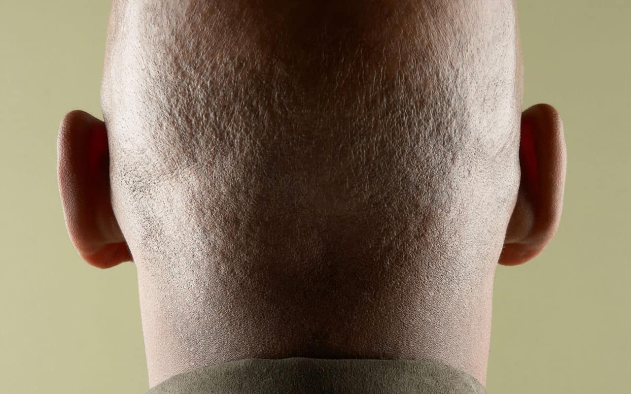 when it all falls out: top cures for male hair loss • ebony