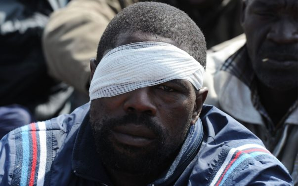 Injured South African Miner