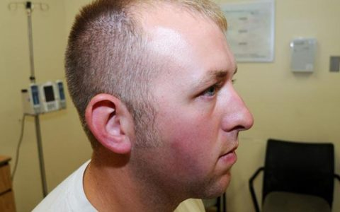 Newly Released Photos of Officer Darren Wilson's Injuries