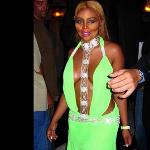 The final result from plastic surgery that has completely changed Lil' Kim's face