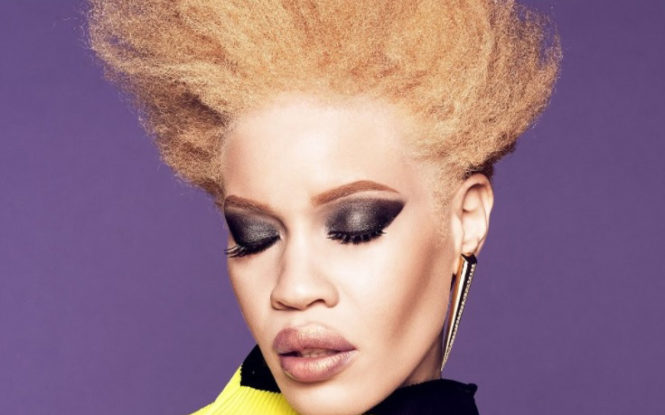 History Made: Woman Becomes 1st Albino Model to Head A Beauty Campaign