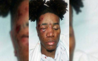 Lesbian Woman Brutally Assaulted in Los Angeles Hate Crime