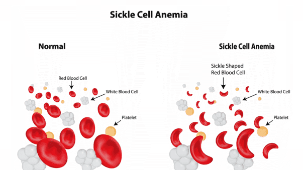 World Sickle Cell Day Facts About The Inherited Blood Disorder Video