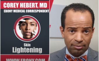 Corey Herbert, Skin Lightening