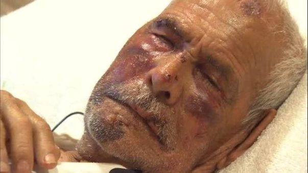 Elderly Mexican Man Beaten With Brick by Woman Yelling, 'Go Back to Your Country'